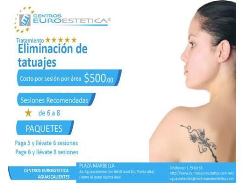 Paquete eliminación  de tatuajes