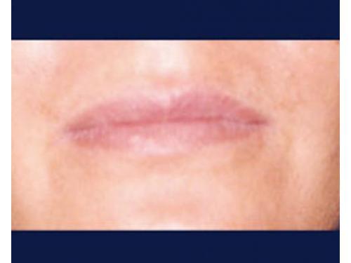 Aumento de volúmen labial con ácido hialurónico; antes