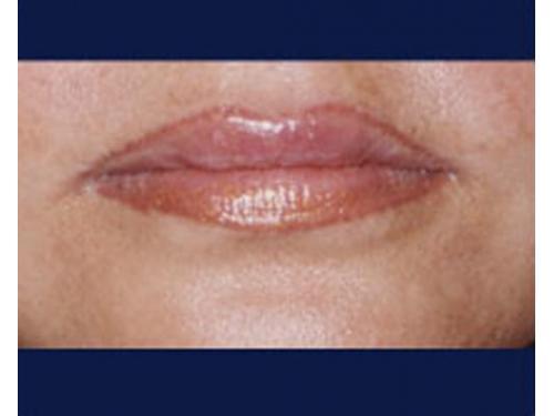 Aumento de volúmen labial con ácido hialurónico; después