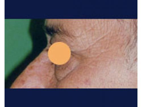 Blefaroplastía; antes