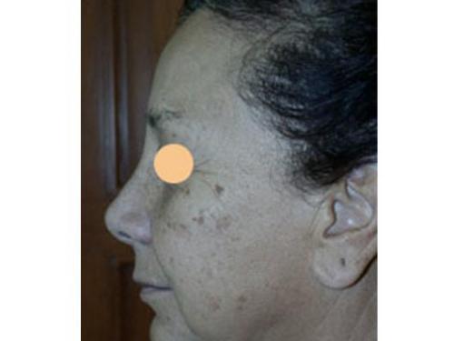 Rejuvenecimento facial láser erbium yag; antes