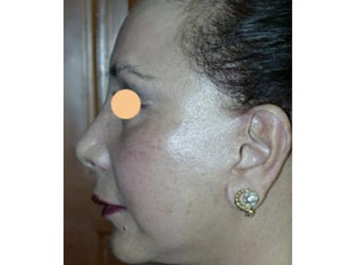 Rejuvenecimento facial láser erbium yag; después