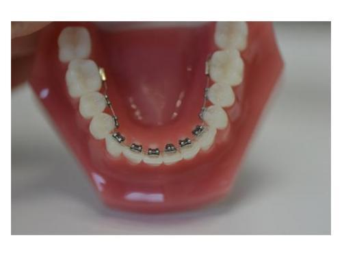 Tratamientos para tu sonrisa