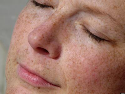 Tratamientos Médicos Enfermedades de la piel, pelo y uñas.  Detección, diagnóstico y tratamiento del cáncer de piel.  Tratamientos Estéticos Rejuvenecimiento facial. Calvicie, alopecia o pérdida de cabelllo. Arrugas o líneas de expresión. Delinea